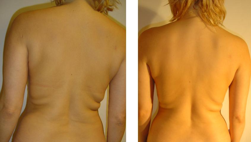 przed i po 12