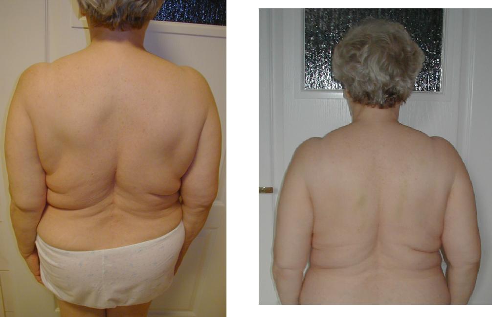 przed i po 13