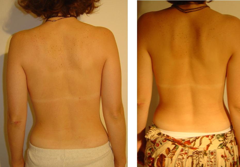 przed i po 14