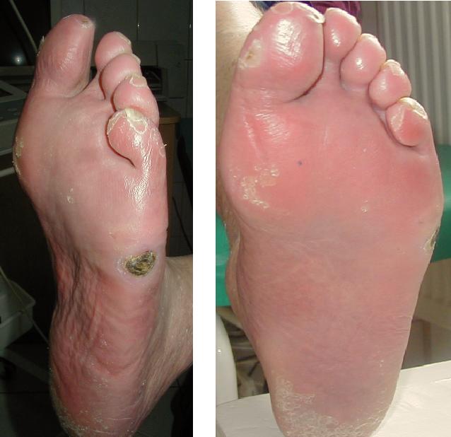 przed i po 18