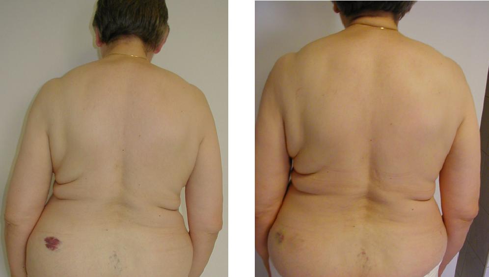 przed i po 23