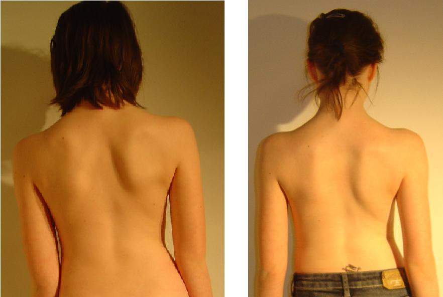 przed i po 24