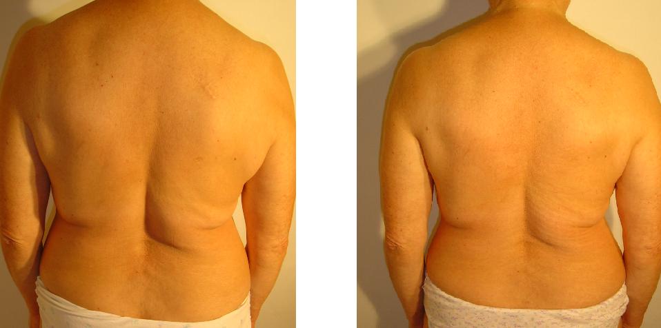 przed i po 26