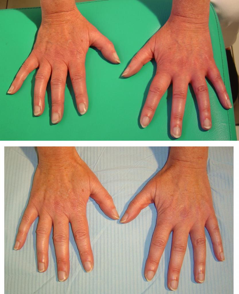 przed i po 29