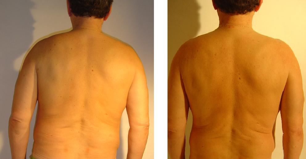 przed i po 3
