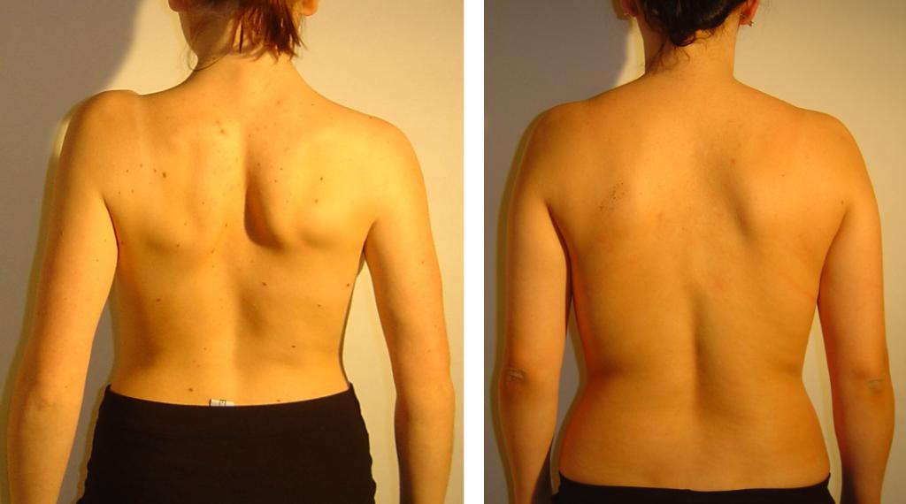 przed i po 35