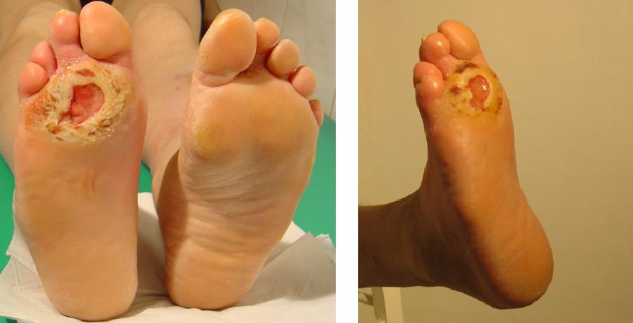 przed i po 36