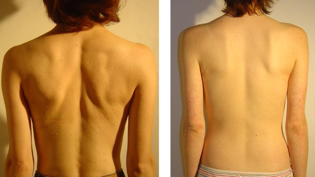 przed i po 51