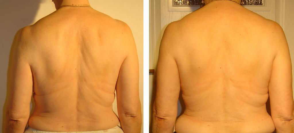 przed i po 56