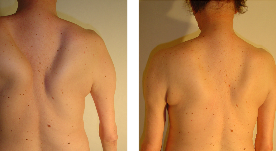 przed i po 57