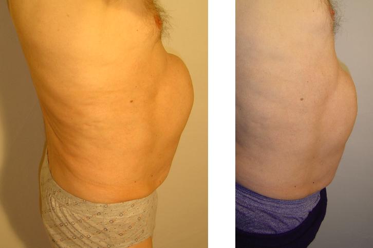 przed i po 70