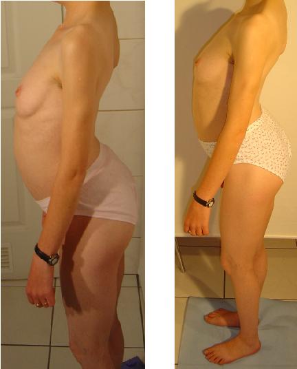 przed i po 8