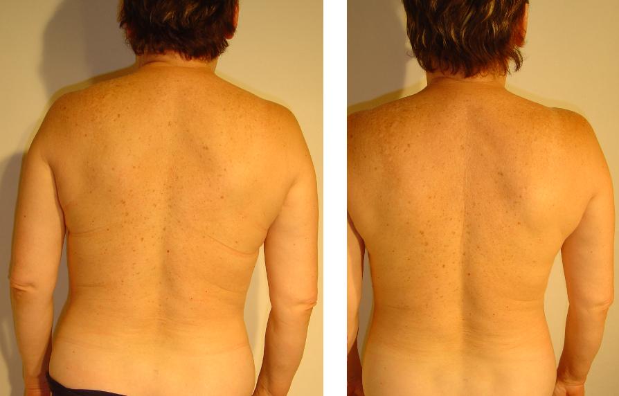 przed i po 9
